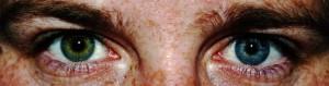 heterochromia pediatrics