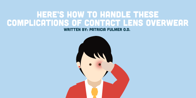 Here's How to Handle These Complications of Contact Lens Overwear