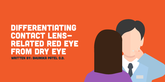 Differentiating Contact Lens-Related Red Eye from Dry Eye