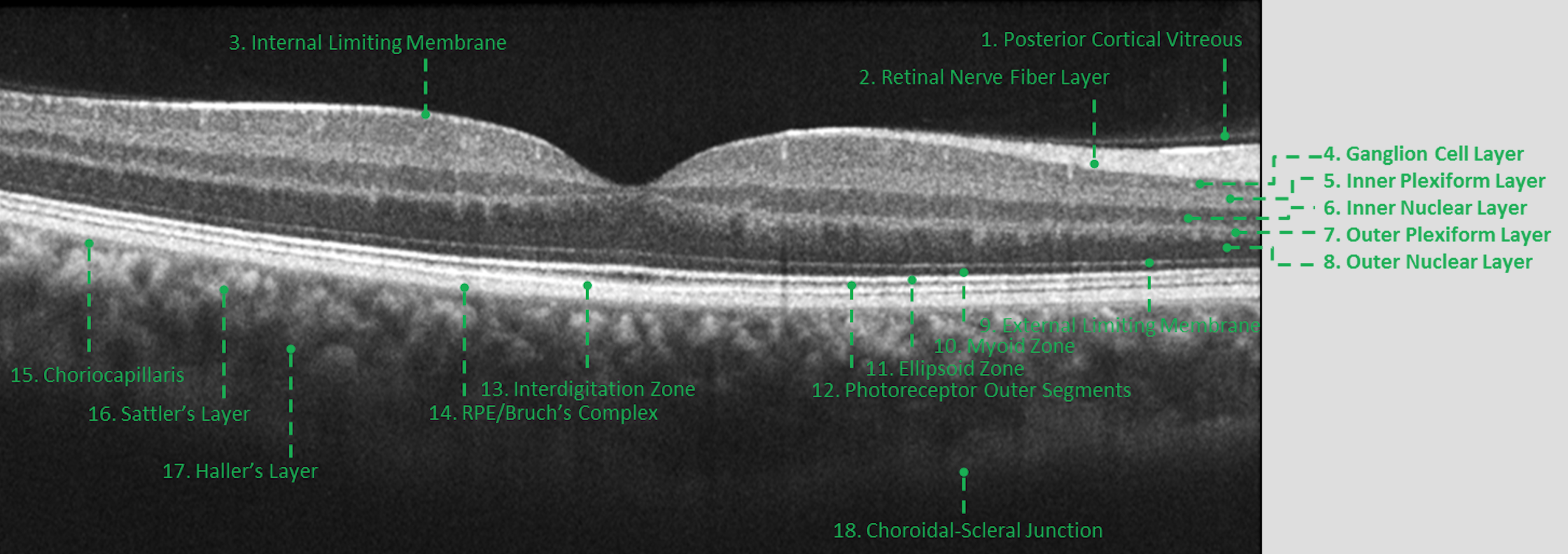 A Complete List of Ocular Diseases with Optical Coherence Tomography
