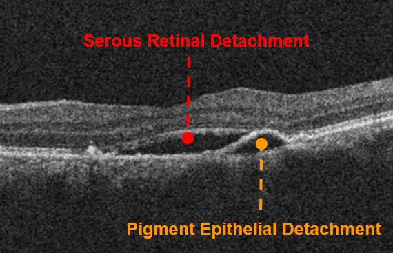 oct-of-central-serous-chorioretinopathy