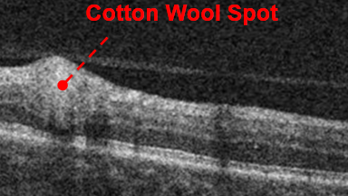 oct-of-cotton-wool-spot
