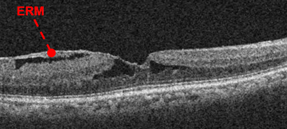oct-of-epiretinal-membrane