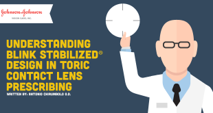Understanding BLINK STABILIZED<sup>®</sup> Design in Toric Contact Lens Prescribing