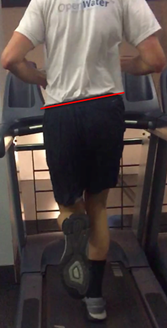 Gait Retraining: A Physical Therapist's Guide | CovalentCareers