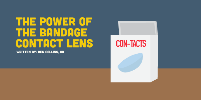The Power of the Bandage Contact Lens