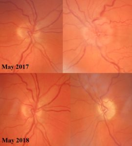 Secondary optic atrophy in optic neuritis