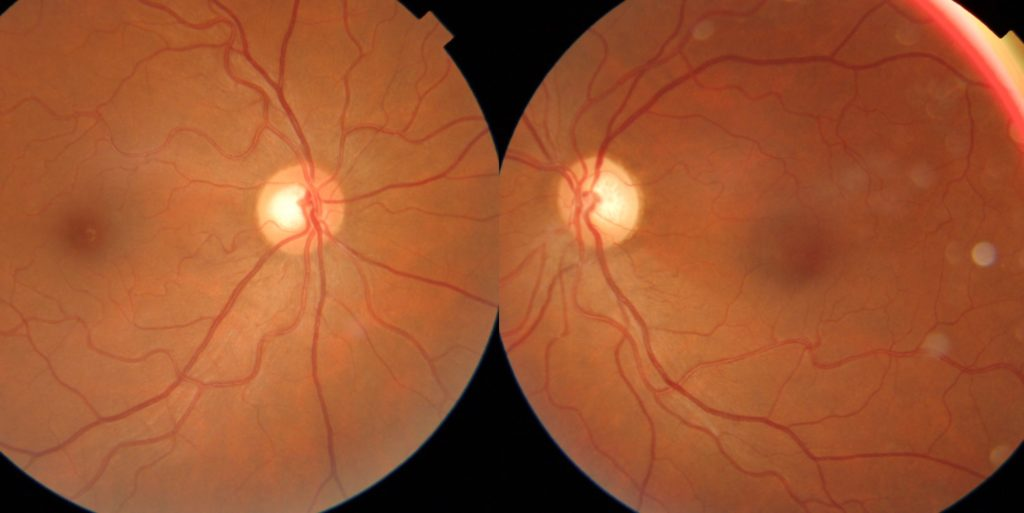 Traumatic optic neuropathy - left eye