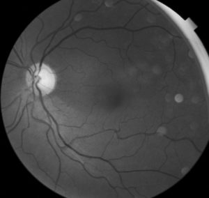 Traumatic optic neuropathy with red-free filter