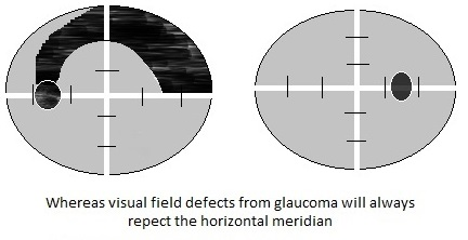 VF glaucoma