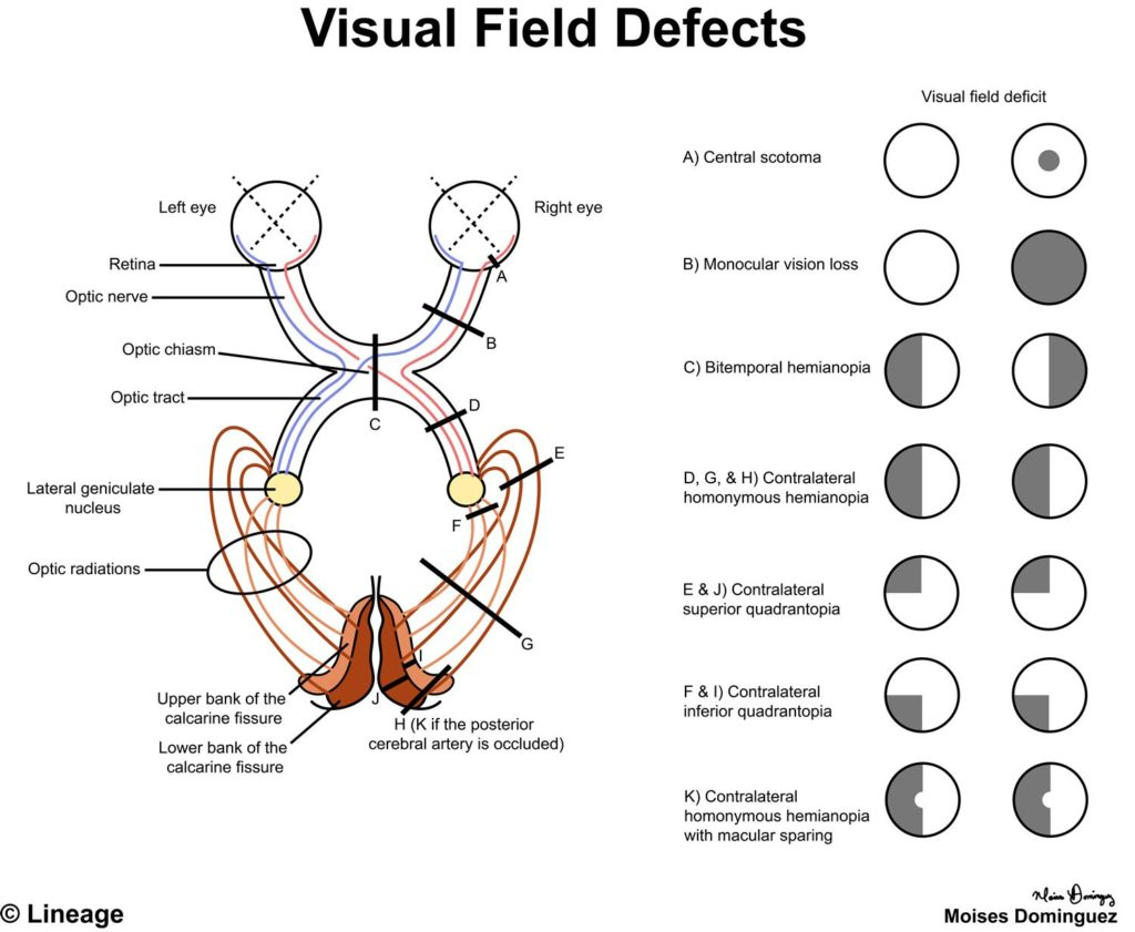 Defects of the Visual Pathways