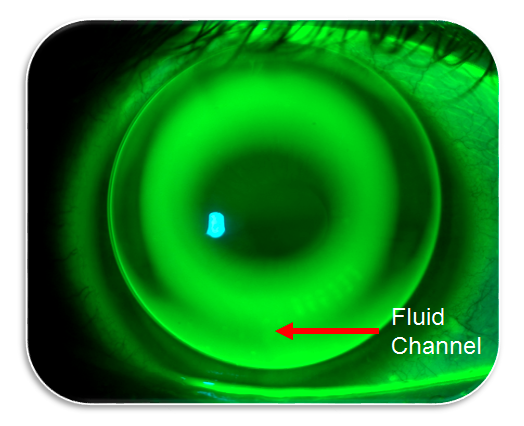 orthokeratology tips fluid channel