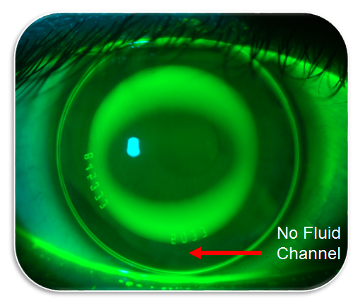 orthokeratology tips no fluid channel