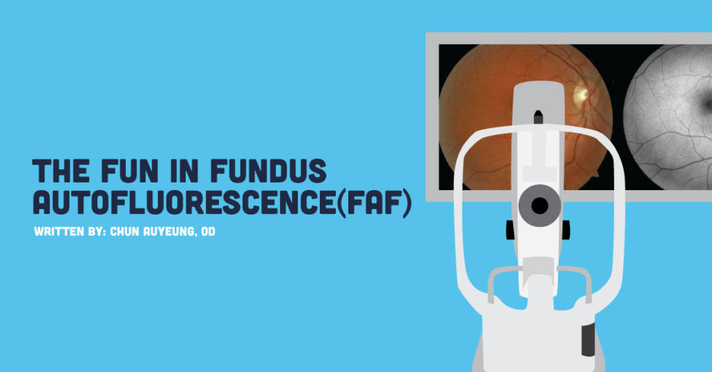 Putting The Fun In Fundus Autofluorescence (FAF)