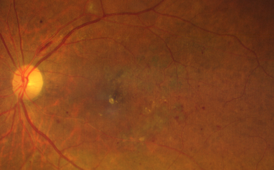 central diabetic retinopathy taken with CLARUS 500