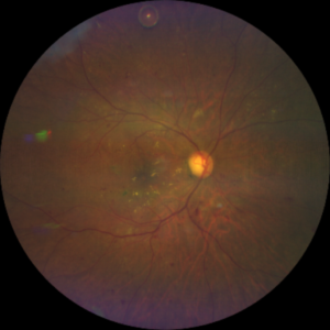 diabetic retinopathy taken by CLARUS 500