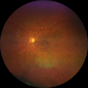 midperipheral and diabetic retinopathy taken with CLARUS 500