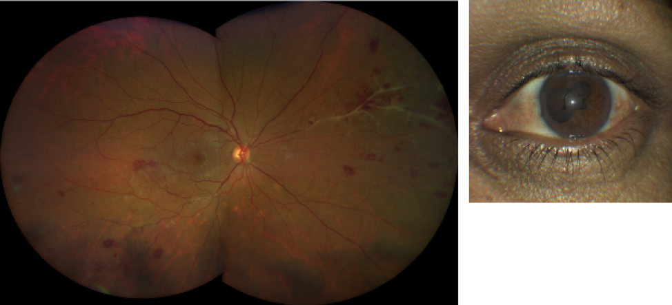 retinal vasculitis taken with CLARUS 500