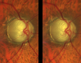 stereo images of optic nerve from clarus 500