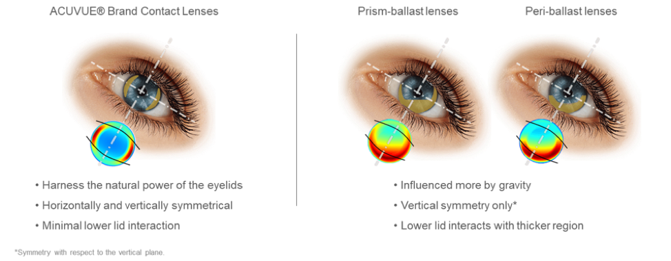 toric contact lens design differences
