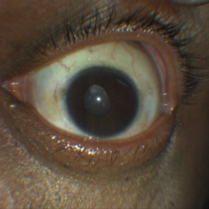 traumatic cataract and iridodialysis taken with CLARUS 500