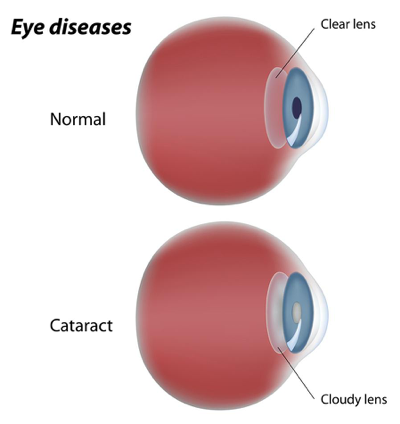 eye conditions caused by diabetes - cataract