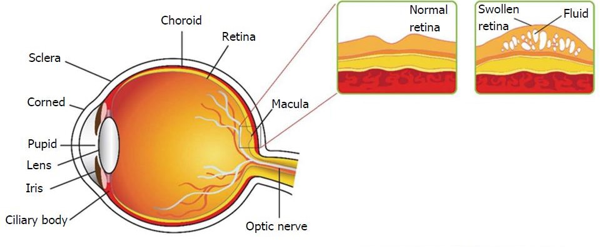 eye conditions caused by diabetes - swelling of retinal layers