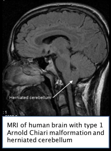 Chiari Malformation MRI