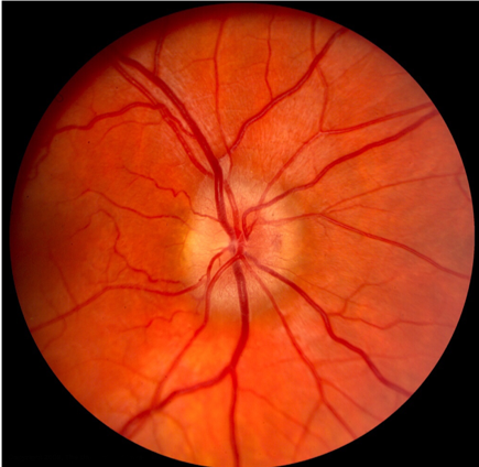 Optic Nerve Edema