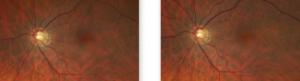 Glaucoma Retinal Image 3