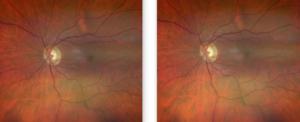 Glaucomatous Retinal Image 4