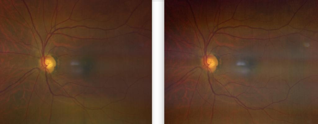 Glaucomatous Retinal Image 5