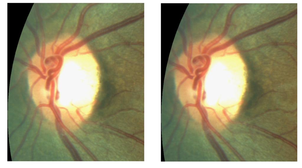retinal image - glaucomatous nerve 1