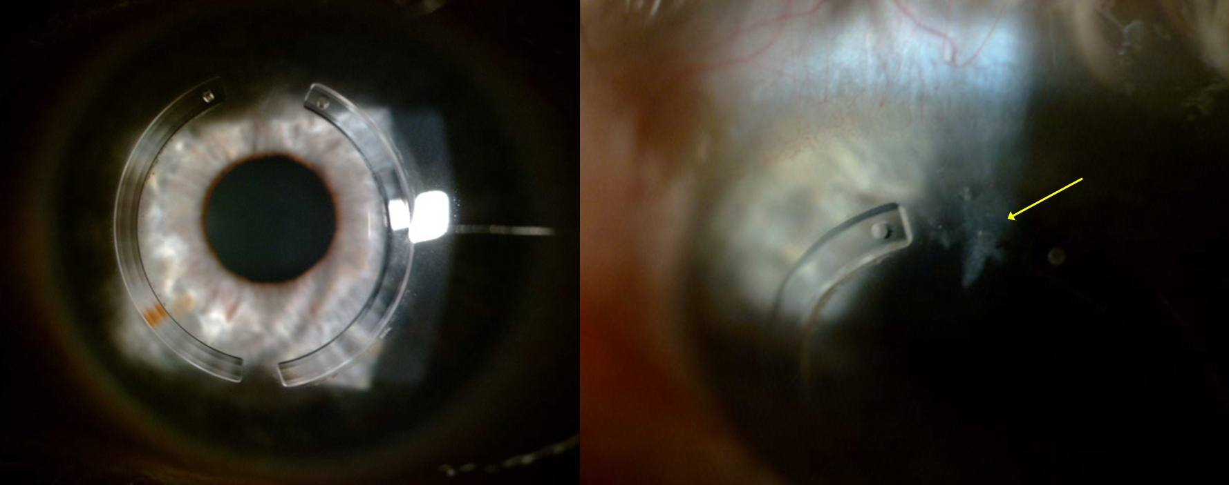 Figure-2-Post-corneal-ring-treatment