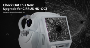 Check Out This New Upgrade For CIRRUS HD-OCT