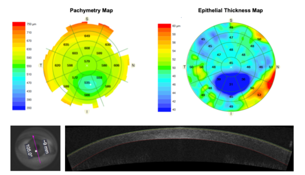 ETM highlights localized epithelial thinning due to keratoconus