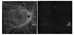 PDR with areas of ischemia and NVE. VRI slab isolates multiple areas of NVE Courtesy of Dr. Scott Lee, East Bay Retina Consultants, Oakland, CA, USA.