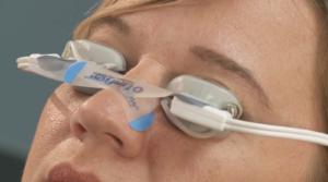 Application of LipiFlow® tape.