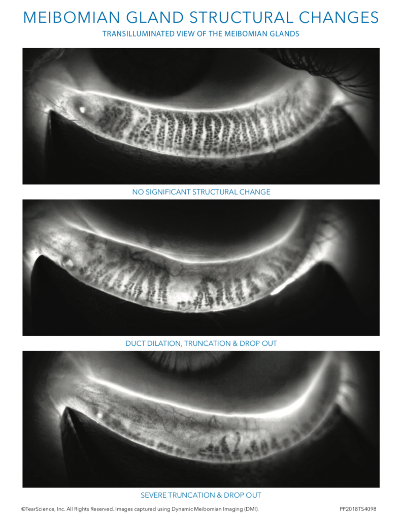 Meibomian Gland Structural Changes