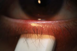 No Oil On Meibomian Gland Expression