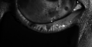 Right Eye: LipiScan™ shows multiple, complete gland atrophy and 0-75% truncation with mild tortuosity.