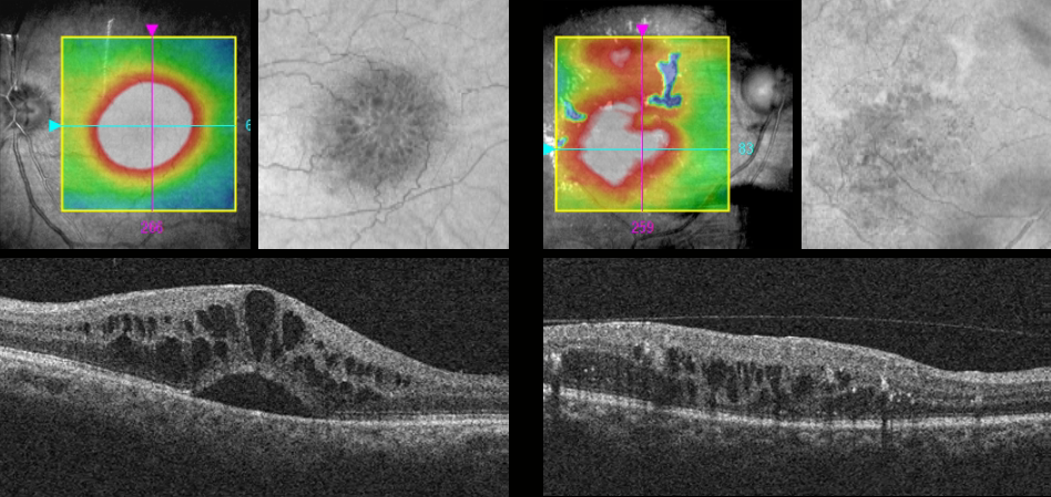 Diabetic Retinopathy - Macular Edema on OCT