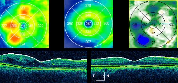 Diabetic Retinopathy - Macular Edema