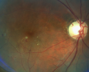 Diabetic Retinopathy - NAION Fundus Photo