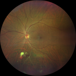 Diabetic Retinopathy - Retinal Artery Occlusions
