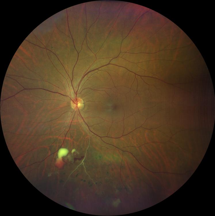 Diabetic Retinopathy - Retinal Artery Occlusions