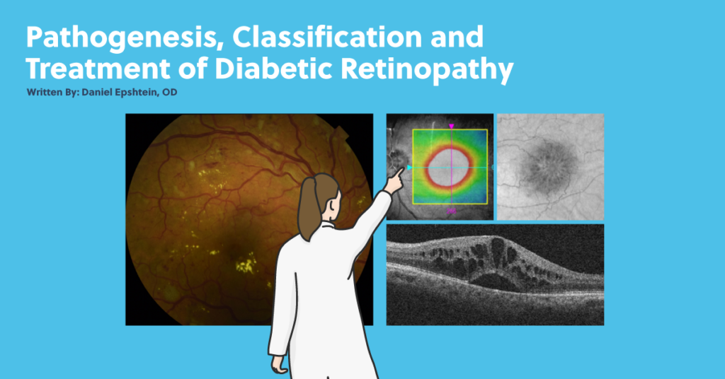 pathogenesis classification and treatment of diabetic retinopathy