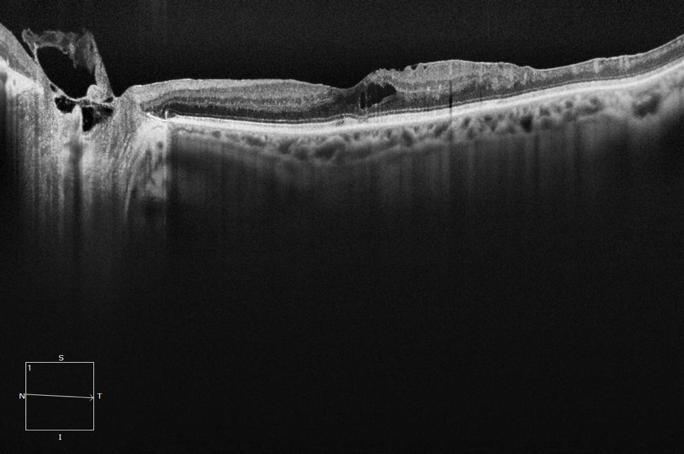 12mm HD 1 Line 100x Averaged CIRRUS 6000