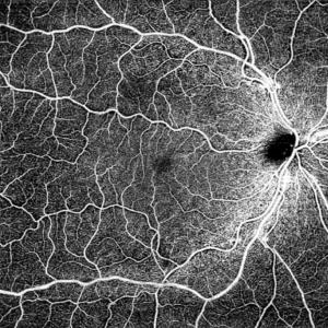 "CIRRUS 6000 12x12mm OCTA – Single Shot of ""Normal Eye"""